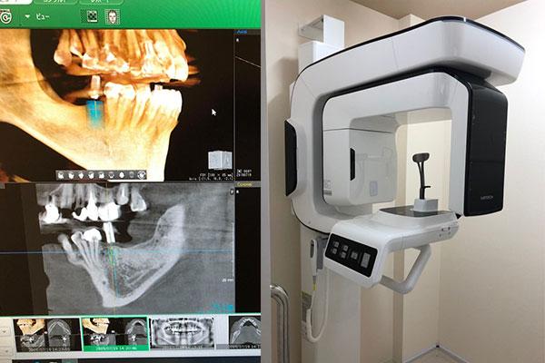 より正確な診断の為に天野歯科医院でもCTを導入しました