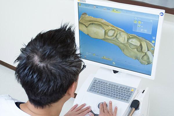 セレックシステムによる3D設計