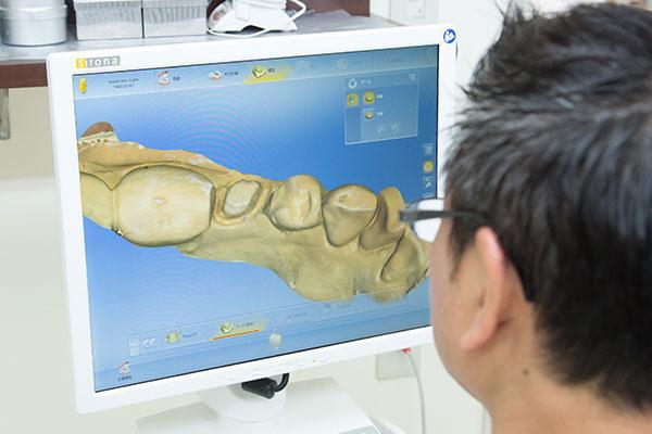 天野歯科医院のセレックシステム